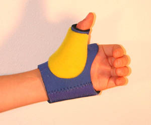 Thermoplastic Stay Modification (Standard Thumb Stay)
