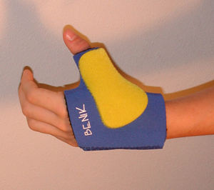 Thermoplastic Stay Modification (Dorsal Thumb Stay)